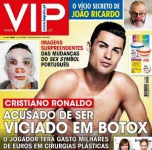 Cristiano si botox